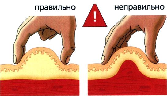 Как делать подкожные уколы фото